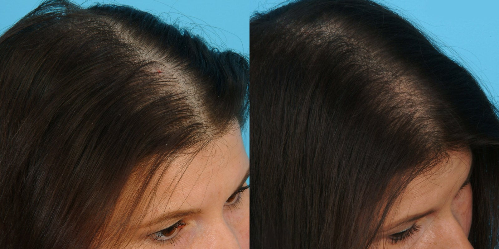 эффект дарсонвализации для волос, дарсонваль для волос, фото до и после дарсонвализации волос, дарсонваль при облысении